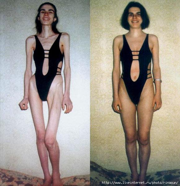 как похудеть после отмены противозачаточных таблеток