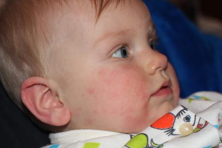 Сыпь у детей 3 недель